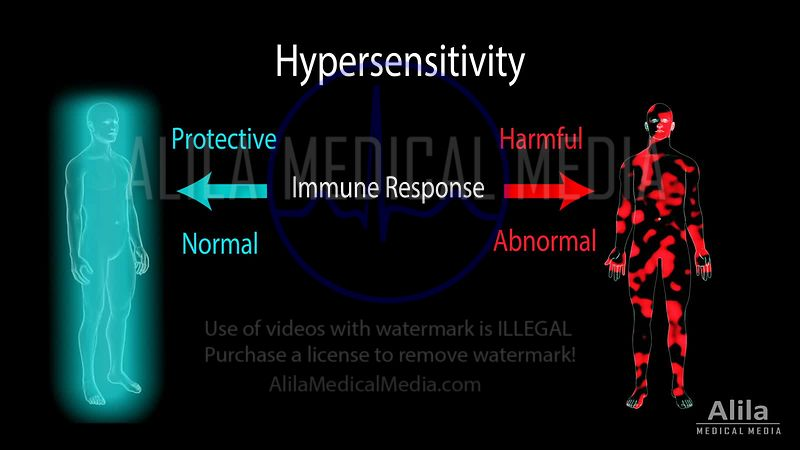 Hypersensitivity NARRATED animation