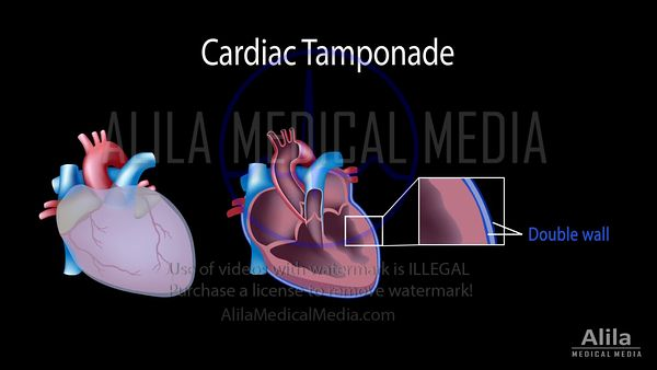 Cardiac tamponade NARRATED animation